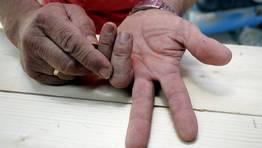 Felo muestra las huellas de alg�n accidente FOT�GRAFO: MONICA IRAGO