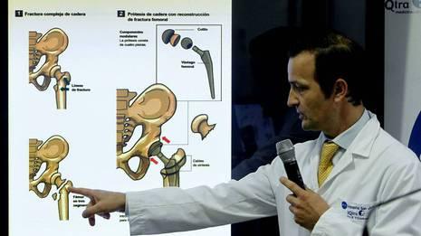 El doctor �ngel Villamor explica los detalles de la operaci�n �ngel D�az / Efe