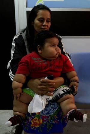 El beb m s obeso de colombia pesa m s de 20 kilos - Comedor compulsivo tratamiento ...